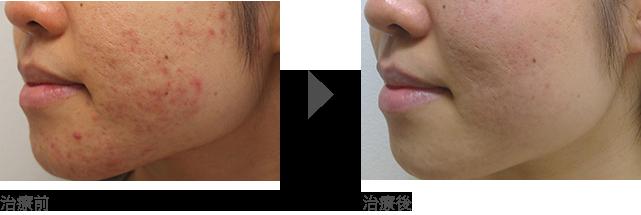 ■頬、顎(あご)周りのニキビ治療 20代後半 女性