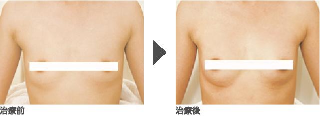 ヒアルロン酸注入(バスト・デコルテ)  30代 女性