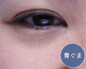 の くま 目の下 目の下のクマを取る方法 原因と解消方法 目の美容チェック