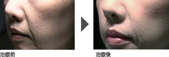 頬のたるみ