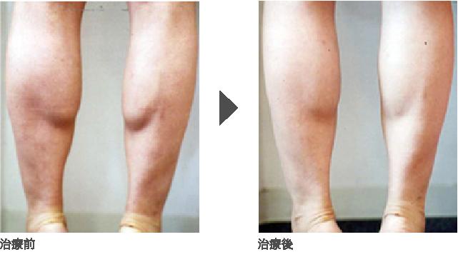脚痩せ(ふくらはぎの脚痩せ)