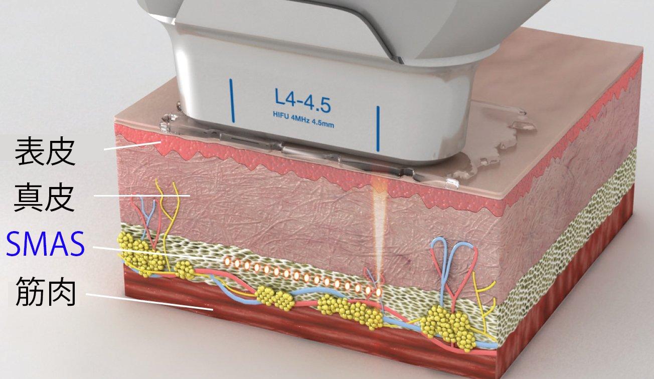 筋膜(SMAS)